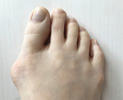 外反母趾のテーピング治療